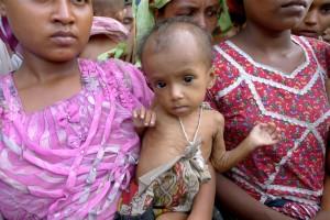 malnourishedbaby
